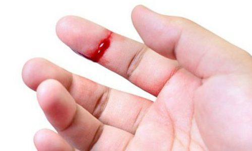 Cách cầm máu nhanh cho vết thương hở